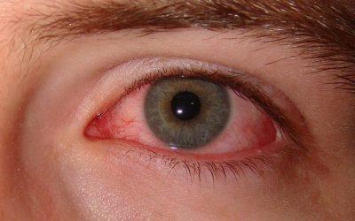 Dry Eyes/Blepharitis