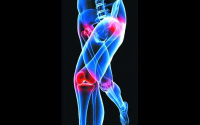 Pain in Bones, Joints and Muscles