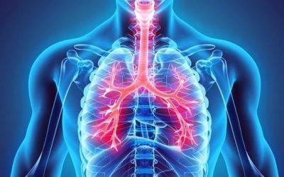 Chest Diseases