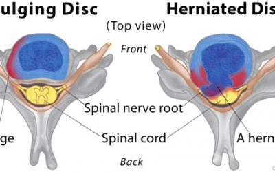 I suffered from a Herniated Ruptured Disc for 16 years